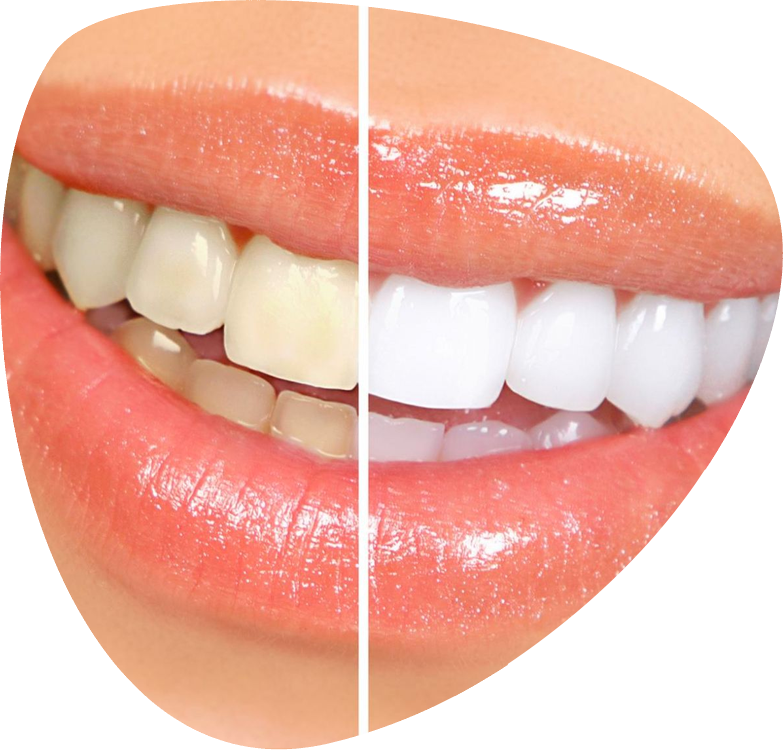 clareamento-laser-dental-bh
